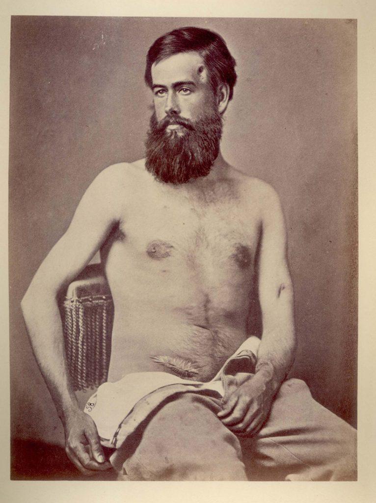 Edson D. Bemis